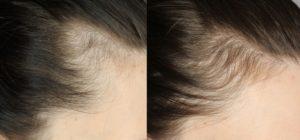 Hair Loss Prevention - Myths & Types