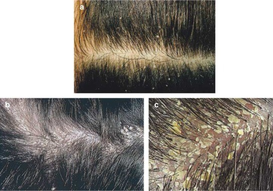 Hair Fall Prevention - Part-III