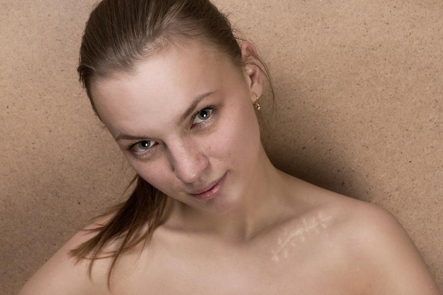 scar cream